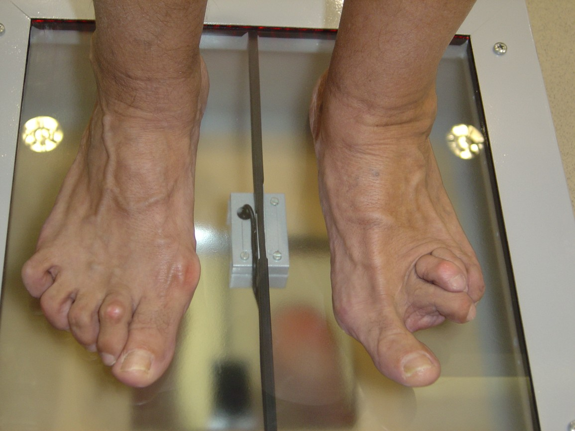Vyšetření nohou