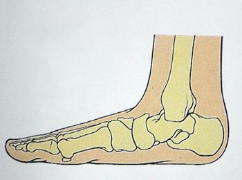 Plochá noha