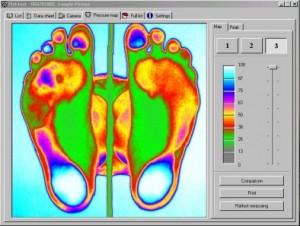 Aktivní noha - Vyšetření nohou v podologické praxi